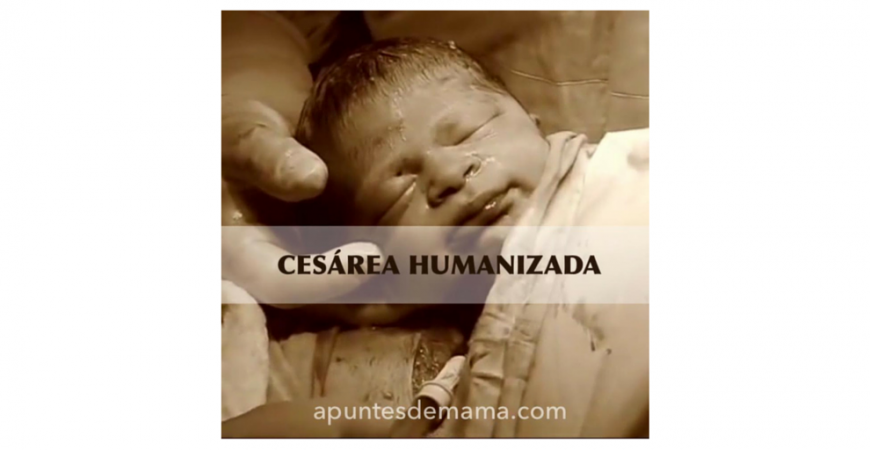 Cesárea Humanizada